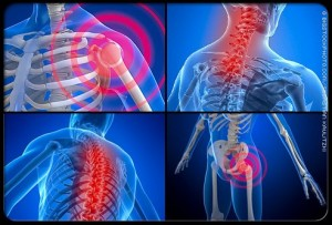 Fibromyalgia and Acupuncture