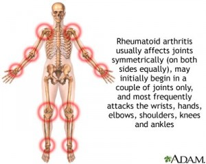Arthritis and Acupuncture