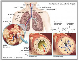 Acupuncture and Asthma