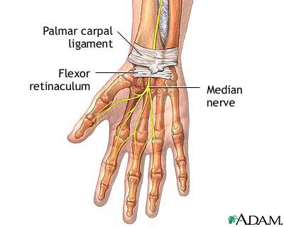 Carpel Tunnel Syndrome and Acupuncture