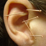 Ear Acupuncture Hawaii