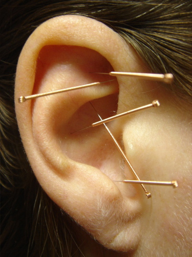 Traditional Chinese Medicine Acupuncture Arts Hawaii