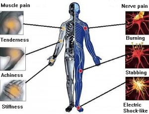 Pain Diagram
