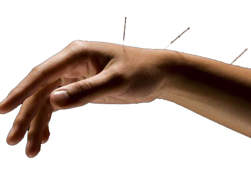Carpal-Tunnel-Acupuncture